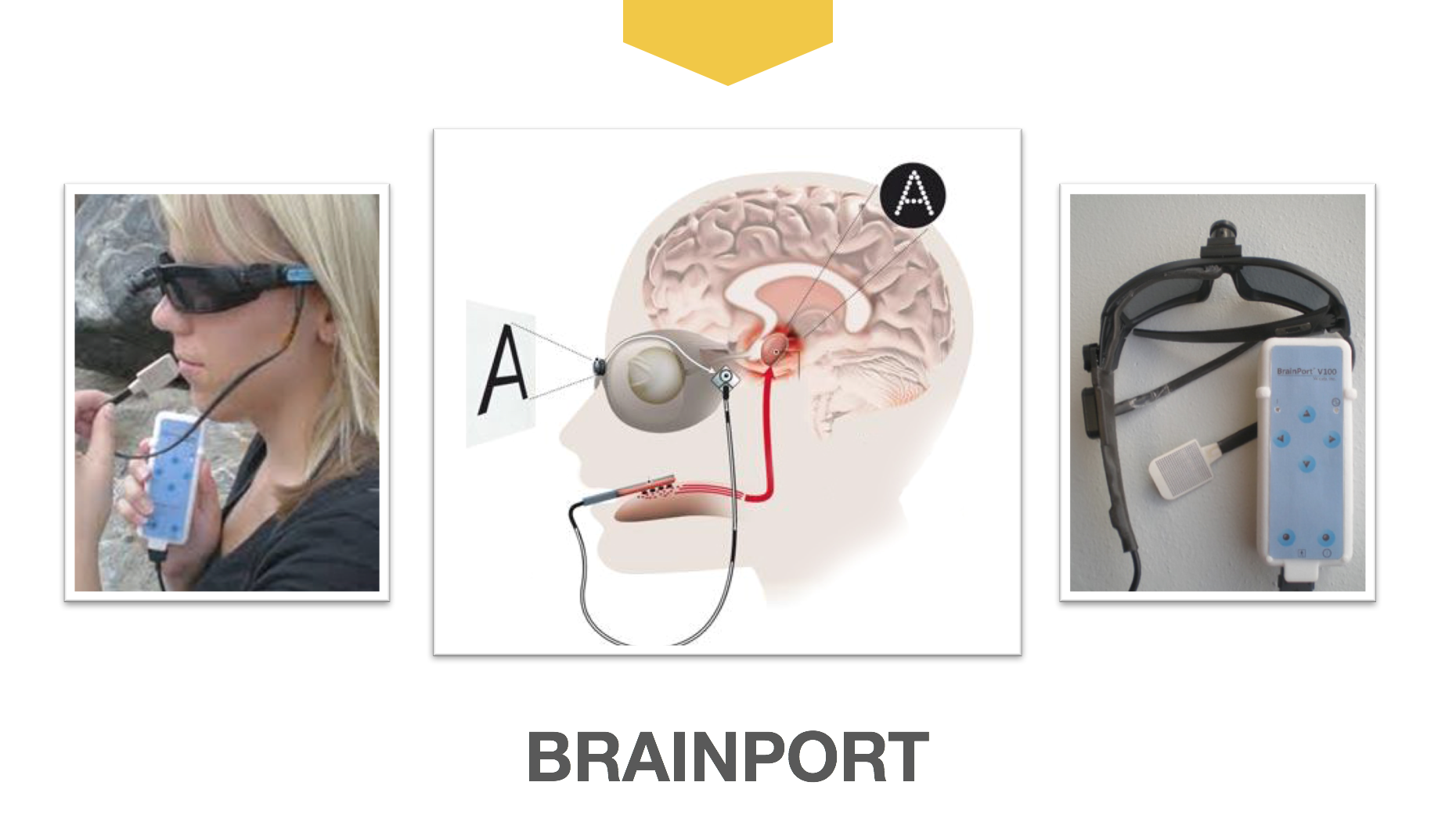 Brainport sensory substitution
