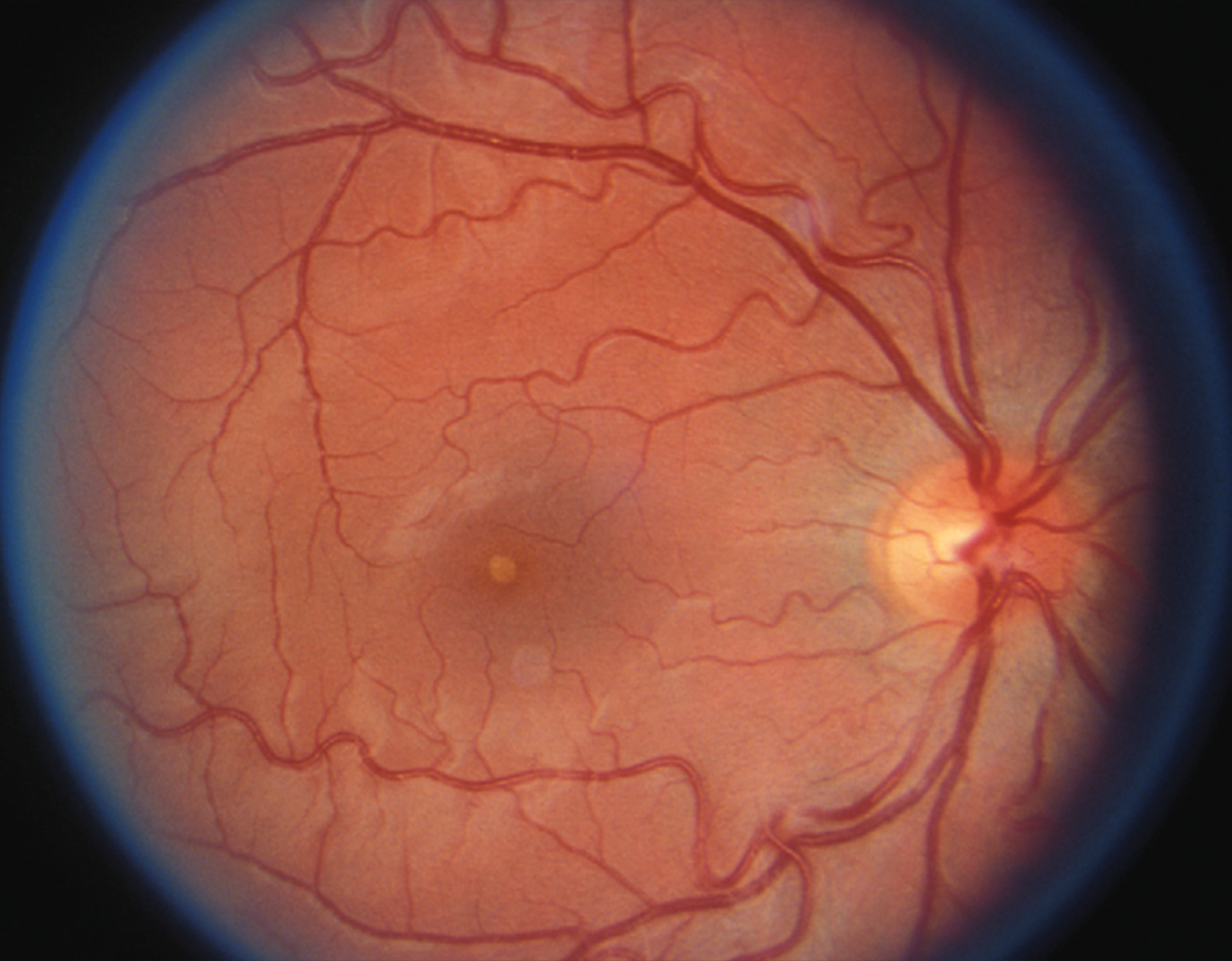 Bio - Dr. Edward A. Ryan MD PCDiseases and Surgery of the Retina
