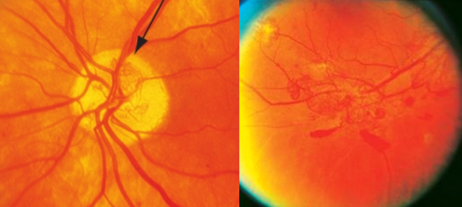 Above is standard photos 10A (left) and 7 (right) depicting approximately 1/3 disc area of NVD and at least 1/2 disc area of NVE, both of which would classify as PDR whether or not vitreous or pre-retinal heme was present.