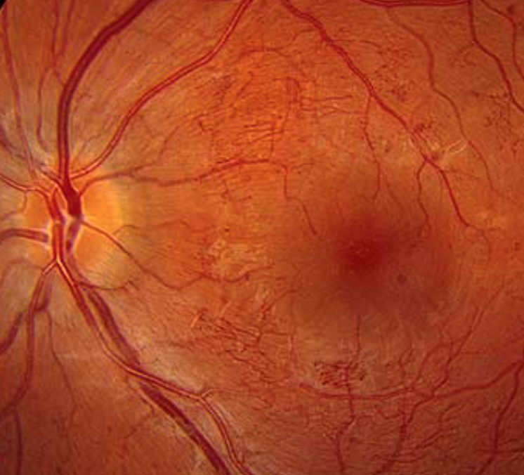 Intraretinal microvascular abnormalities (or IrMAs) are shunt vessels and appear as abnormal branching or dilation of existing blood vessels (capillaries) within the retina that act to supply areas of non-perfusion in diabetic retinopathy. When compared to neovascularization (NV) in proliferative disease, IRMAs are slightly larger in caliber with a more broad arrangement and are always contained to the intraretinal layers.