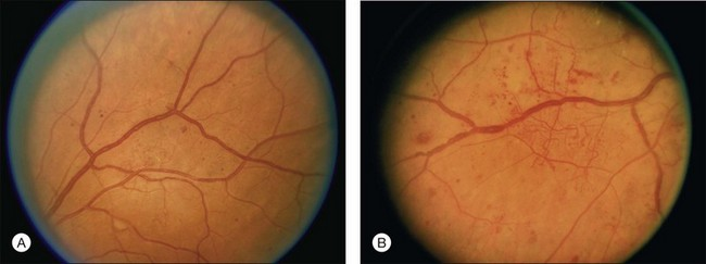 Venous Beading Diabetic Retinopathy